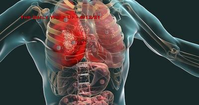 COVID Jab postmortem finds 'Viral RNA in nearly all organs'